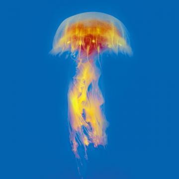 Ожог можно получить при разных обстоятельствах. Итолько его «рабочий» характер потребует оформления производственной травмы
